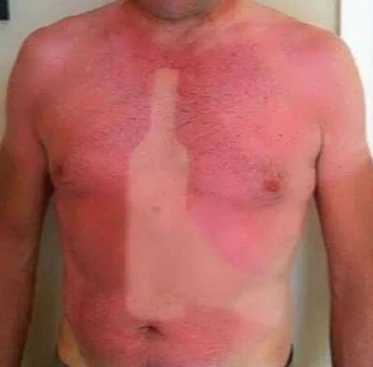 Sunburns are one of life's most effective ways of letting you know you screwed up. Not only do they hurt, they also serve as a visible reminder, for you and anyone who might see you, to put on some sunscreen next time. It's bad enough to walk around looking like Patrick from Spongebob. But full...