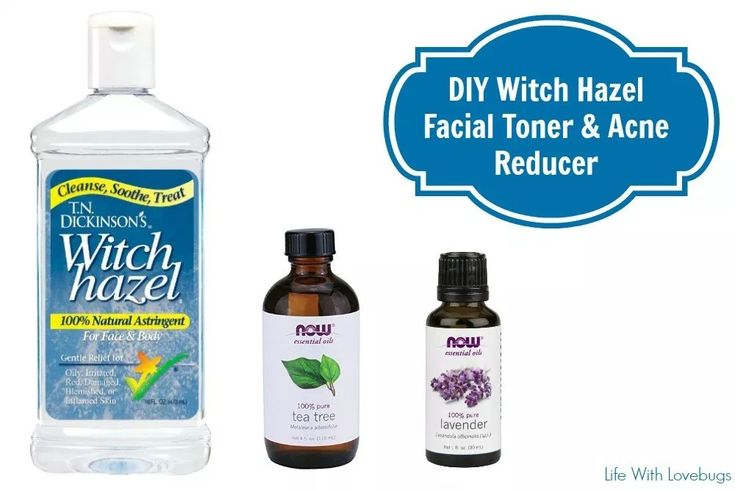 DIY Witch Hazel Facial Toner & Acne Reducer – Life With Lovebugs
