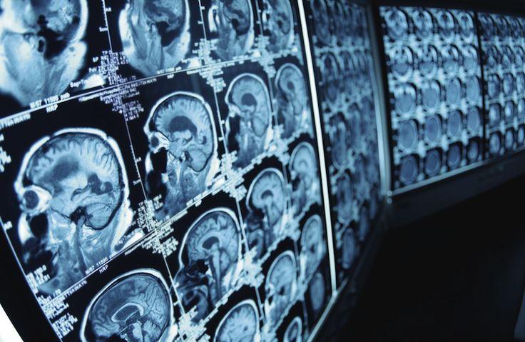 Diseñan nanopartículas para combatir tumores cerebrales.