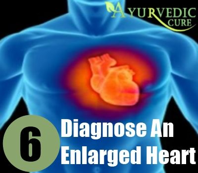 6 How To Diagnose An Enlarged Heart