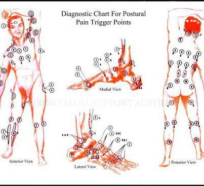Here is a great chart to help you locate trigger points related to postural pain.