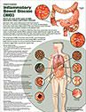 Diseases of Digestive System anatomy poster for exam room or classroom