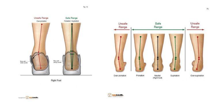 38 best shin splints images on shin splints