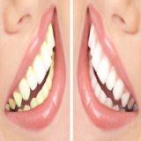 Best dental clinic in south Delhi  dental cosmetic surgery   Braces on teeth