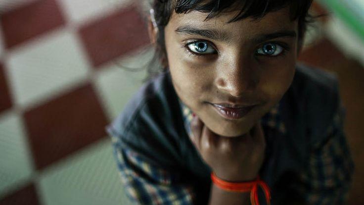 Vítima de Gás Cianeto - Desastre tóxico deixa a terceira geração com problemas de audição na cidade de Bhopal na Índia. Foto:D.Siddiqui/Reuters