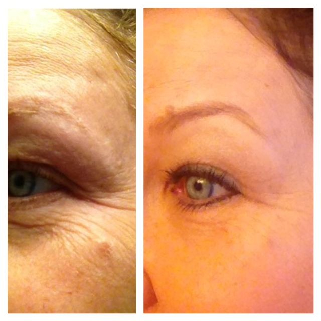 My friend Lorraine here in Raleigh.  Amazing results from using Nerium, don't you think?