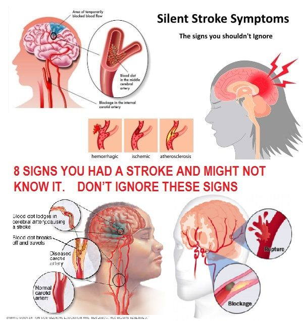 how to know if had stroke