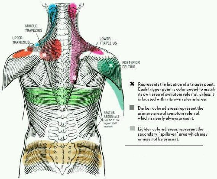 Trigger points for relieving neck, back and shoulder pain and stiffness