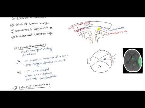 Epidural Hematoma, Subdural hematoma, Subarachnoid hematoma, Intracerebral hemorrhage - YouTube