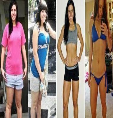 Will weight loss cure pcos image 1