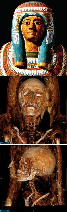Computed Tomography Images Ancient Egyptian Mummy