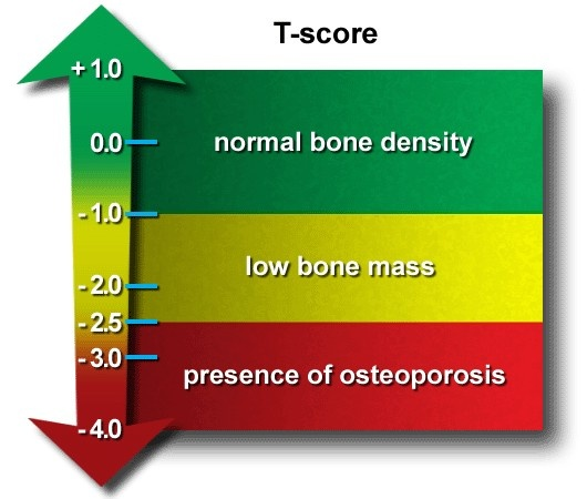26 best osteoporosis images on pinterest bone health bones and dice