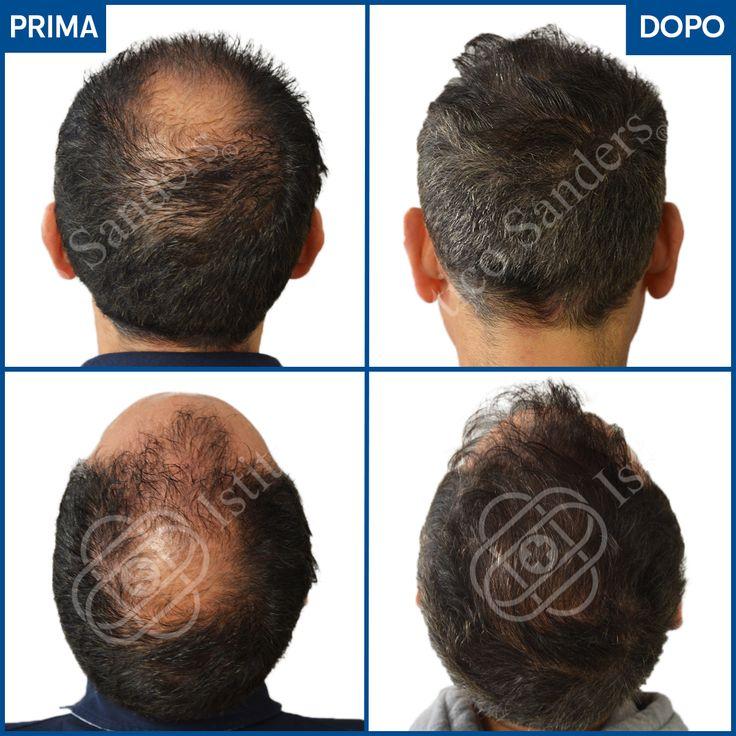 Il risultato di Daniele | Caduta di capelli, Capelli ...
