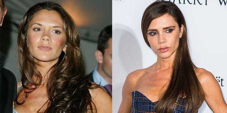El antes y el después de las famosas extremadamente delgadas