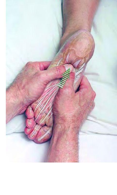 Essayez cette technique de massage imagée pour la fascéite plantaire. Terminez avec l'application de glace pendant 10-15 minutes.