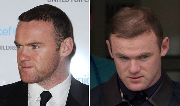 Wayne Rooney and his hair... OMG