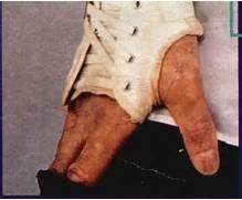 Michael Jackson's skin disease