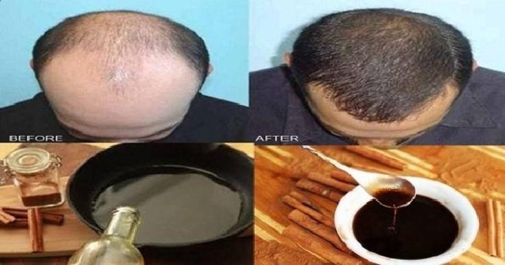 Hay un montón de factores que pueden causar la pérdida del cabello, por ejemplo condicione