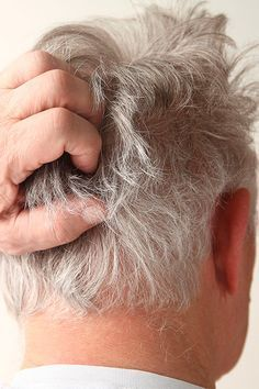 La #dermatitisseborreica es una enfermedad cutánea que afecta a las zonas grasas del cuerpo. Produce #descamacion, #picor y otros síntomas que, si cuidamos la piel, podremos controlar. Hoy os contamos las causas, los síntomas y los tratamientos para mejorar esta #dermatitis tan molesta. #eczemaseborreico #caspa #costralactea #placasdermatitisseborreica #sarpullidosdermatitisseborreica #kambidparafarmacia #parafarmaciaonline #kambid #parafarmaciaonline #parafarmacia #farmacia