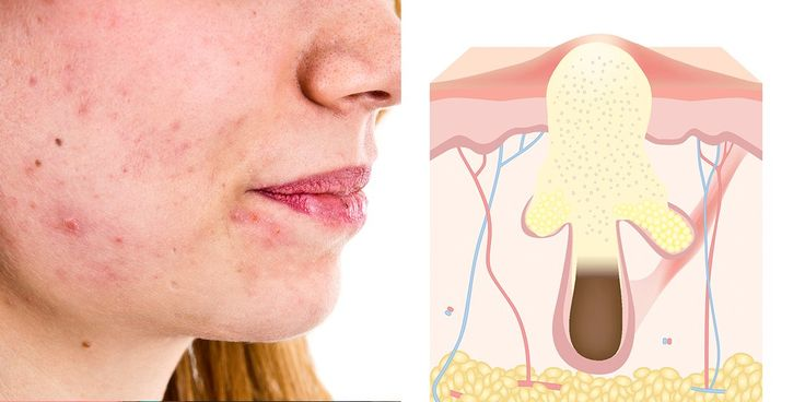 4 Reasons You Have Big, Painful Pimples—And What To Do About It