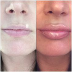City Lips Lip Plumper Before And After