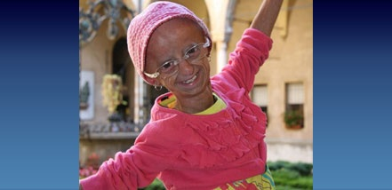 """Hutchinson-Gilford Progeria Syndrome (""""Progeria"""", or """"HGPS"""") is a rare, fatal genetic condition characterized by an appearance of accelerated aging in children."""