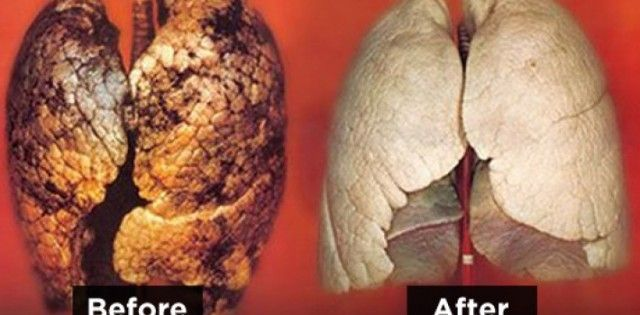 lungs-after-smoking-750x350-710x350-640x315
