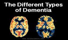 "The Different Types of Dementia These types of dementia often present themselves with very similar symptoms. Even trained physicians may have a trouble determining for certain which type of dementia a patient has, and some people experience multiple types of dementia concurrently, which is called ""mixed dementia""."