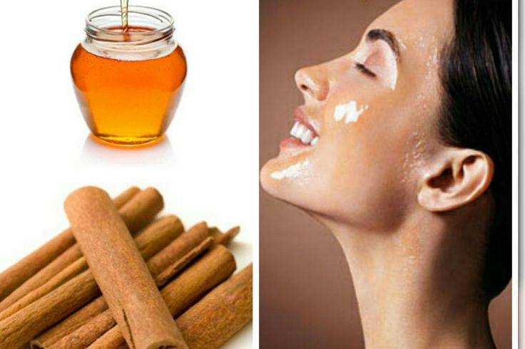 Honey and Cinnomon to avoid pimples