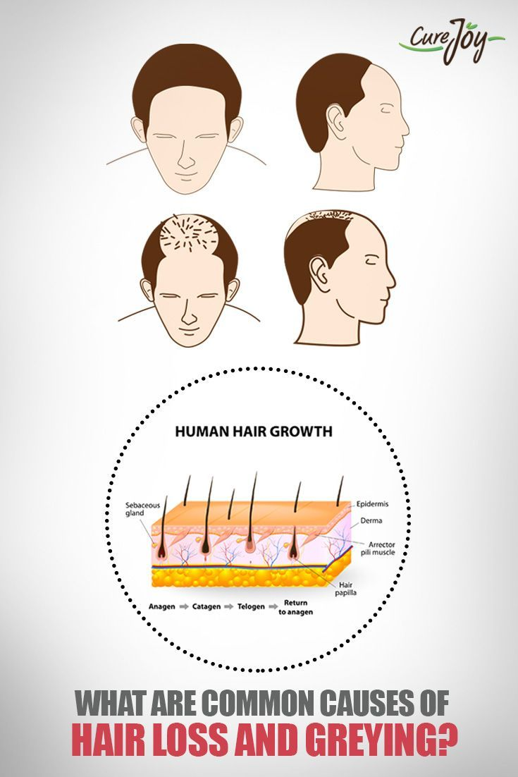 What Are Common Causes Of Hair Loss And Greying?==>  #Health #Healthtips #Healthcare #Healthyliving #Homeremedies #Healthandfitness #Wellness #Lifestyle #Hairloss