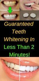 healhty and tips: Guaranteed Teeth Whitening In Le…
