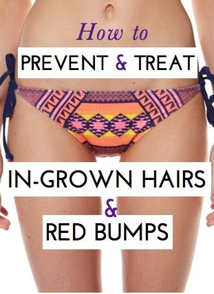 Great expert tips on how to get rid of and prevent those red bumps and ingrown hairs that sometimes come after waxing or shaving