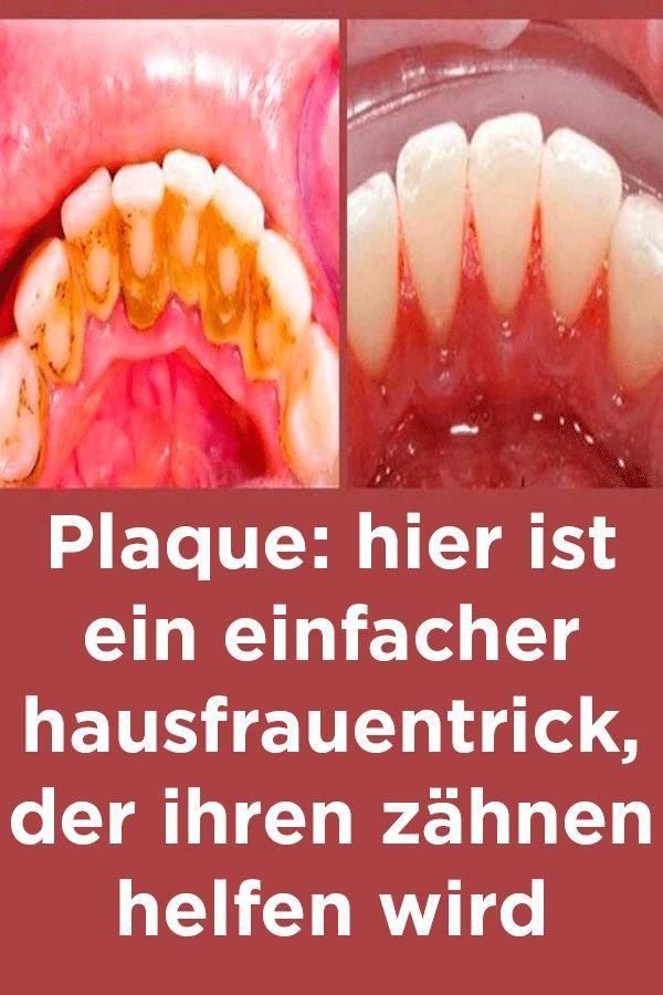 Plaque: hier ist ein einfacher hausfrauentrick, der ihren zähnen helfen wird – Ilse Hippler