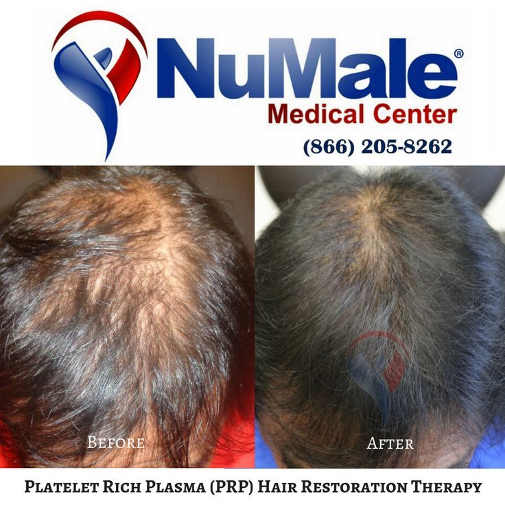 Platelet Rich Plasma (PRP) Hair Restoration Therapy. . 🌟Use Your Body's Own Plasma 🌟Fast Results 🌟Affordable and Cost Effective 🌟No Scarring  🌟No Medications . Schedule Your Consultation 📲 (866) 205-8262 . . . . . #HairLoss #HairGrowth #HairGrow #Alopecia #ThinningHair #Balding #BaldSpots #HairTransplant #HairRestoration #HairReplacement #ThinHair #Hair #ThickHair #HairDoctor #HairVitamins #CurlyHair #StraightHair #BlondHair #Brunette #PRP Not #Bosley #BeforeandAfter #HairSty