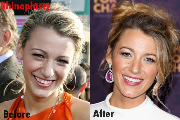 Blake Lively Nose Job Plastic Surgery Before and After Pictures...