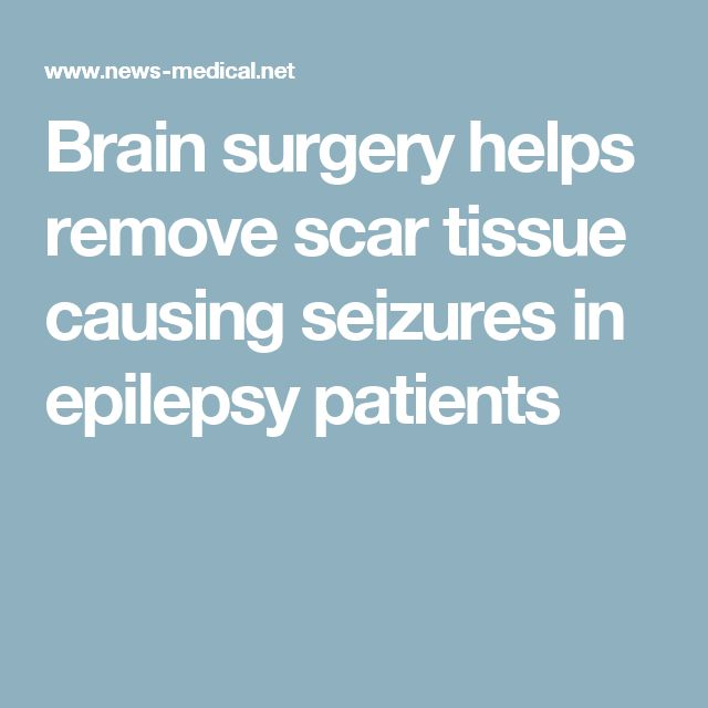 Brain surgery helps remove scar tissue causing seizures in epilepsy patients