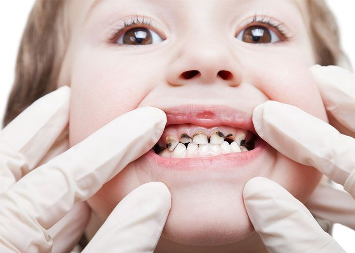 Without a doubt, the biggest misconception the public has about dental health is that the effects of dental diseases are limited only to the teeth and gums. It can and does negatively impact the overall health of the body. Yet, as destructive as dental