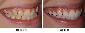 An Inman Aligner was used to straighten this woman's teeth in only 11 weeks. The teeth were whitened and restored with composite bonding to complete the transformation and she was thrilled with her new smile. http://www.praisdental.co.uk/straightening/
