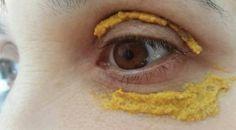 Ha messo della curcuma sul contorno occhi. Dopo soli 5 giorni il risultato è straordinario