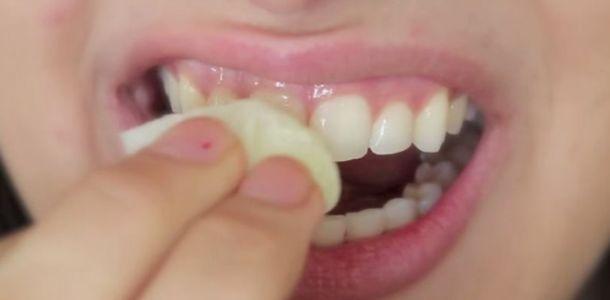 Dentes brancos em apenas 2 minutos! E sem sair de casa!