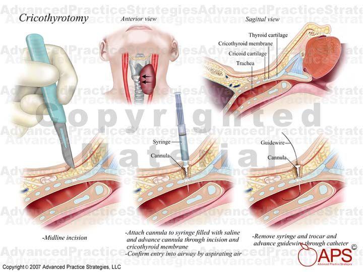 Tracheostomy Tube Explained