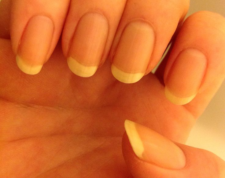 11 best Nail growth progress images on Pinterest | Nail growth ...