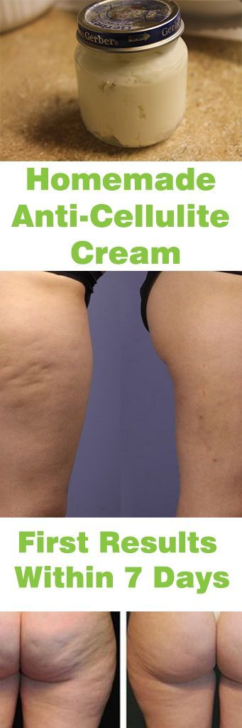 Homemade Anti-Cellulite Cream – First Results Within 7 Days