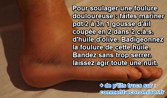 Vous vous êtes fait une foulure sur une cheville ? Ou peut-être sur un poignet ?  Découvrez l'astuce ici : http://www.comment-economiser.fr/foulure-ail-huile.html