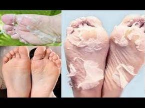 Isso acontece quando você mergulhar os pés no vinagre de maça - É INCRÍVEL O QUE VAI ACONTECER! - YouTube