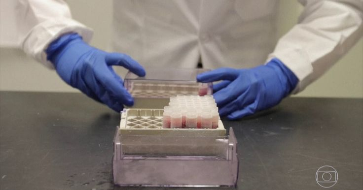 Mutação genética ligada à esclerose múltipla é identificada por cientistas