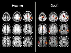 Hearing and Deaf Brains Compared ~ interesting! And may prove using ASL for kids is good for creating brain pathways?! Just saying... More is better!!!