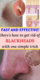 Fast and Effective! Here's how to get rid of bla…