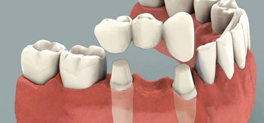 Dental crowns (or caps) are dental restorations that are placed over a tooth when conservative restorations are insufficient to restore form and function. A veneer is a thin layer of ceramic or composite resin tooth-colored filling material that is applied over the tooth to improve it's color and shape. If you want to restore and enhance the look of your smile you have two best options – dental crowns or veneers. At Doncaster Hill Dental Clinic, We offer good dental crown and bridge…