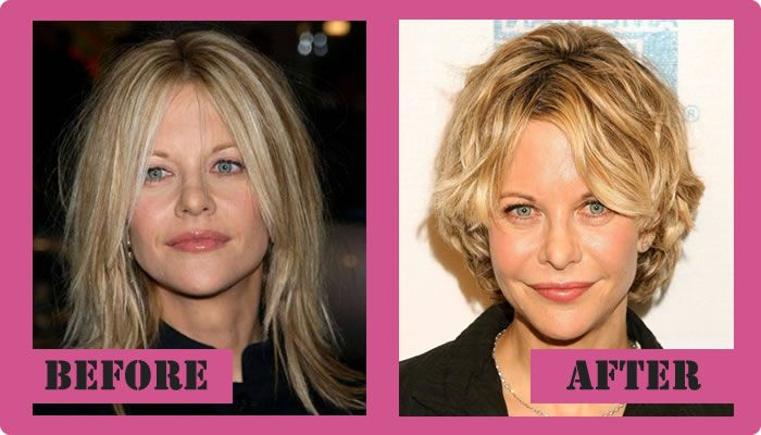 Meg Ryan Plastic Surgery Before And After Meg Ryan Plastic